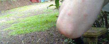Les moustiques au Costa Rica - résultat en image !